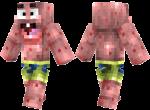 Patrick Skin